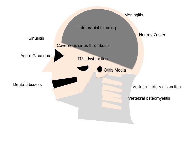 Headache – Clinical Anatomy – CoreMed