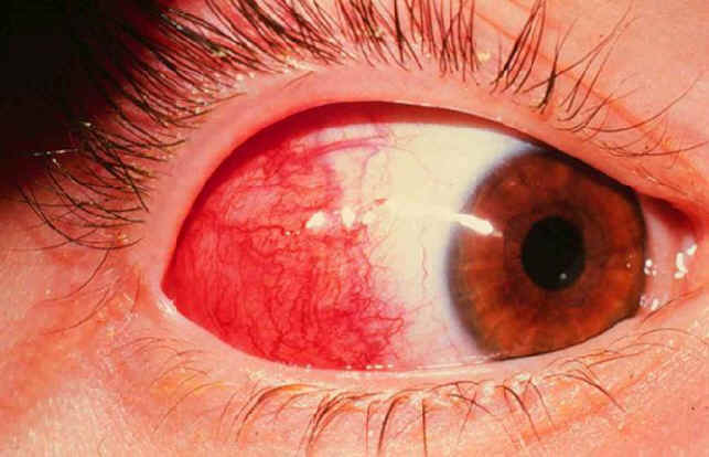 The conjunctiva is the transparent skin that covers the white part of the eyes and the inside of the eyelids